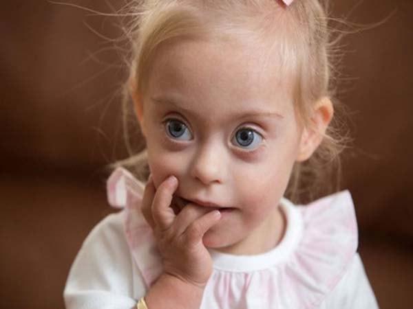 Sàng lọc trước sinh giúp phát hiện hội chứng Down