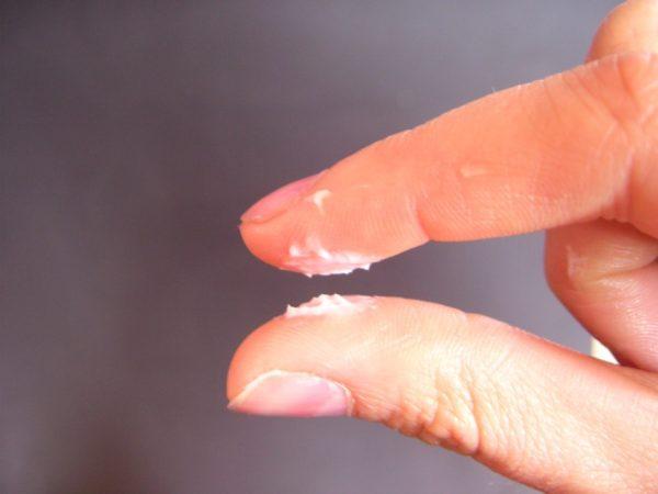 Tinh dịch vón cục dễ khiến tinh trùng bị yếu, bất động và không thể sống sót trước khi gặp trứng