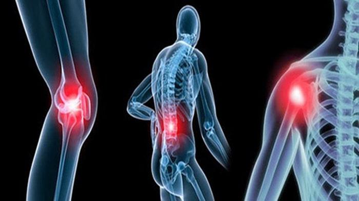 Viêm khớp là bệnh lý khá phổ biến hiện nay